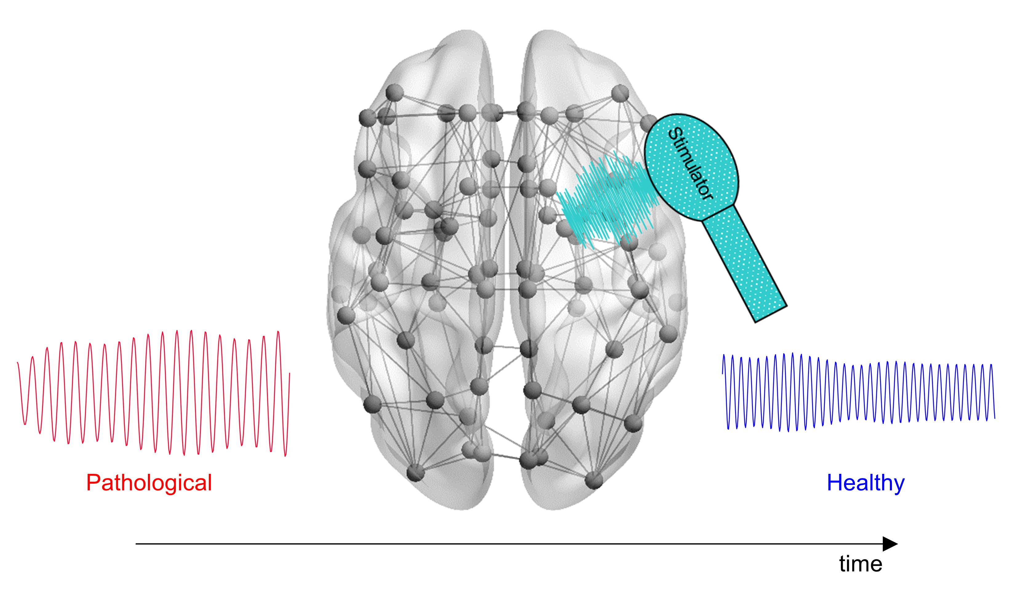 New Computational Tool Could Help Optimize Treatment of Alzheimer's Disease