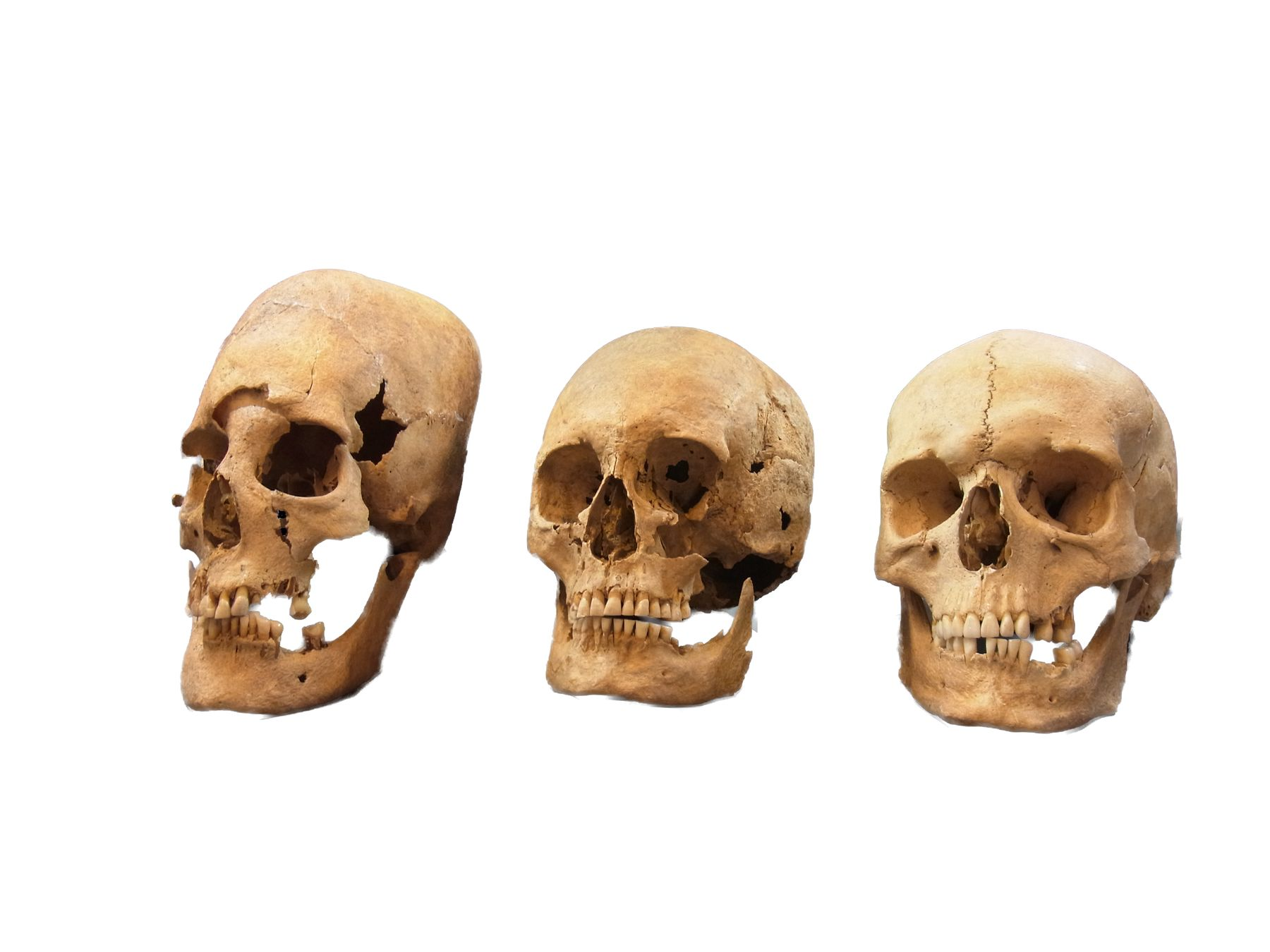 Strong, Intermediate, and Non-Deformed Skulls