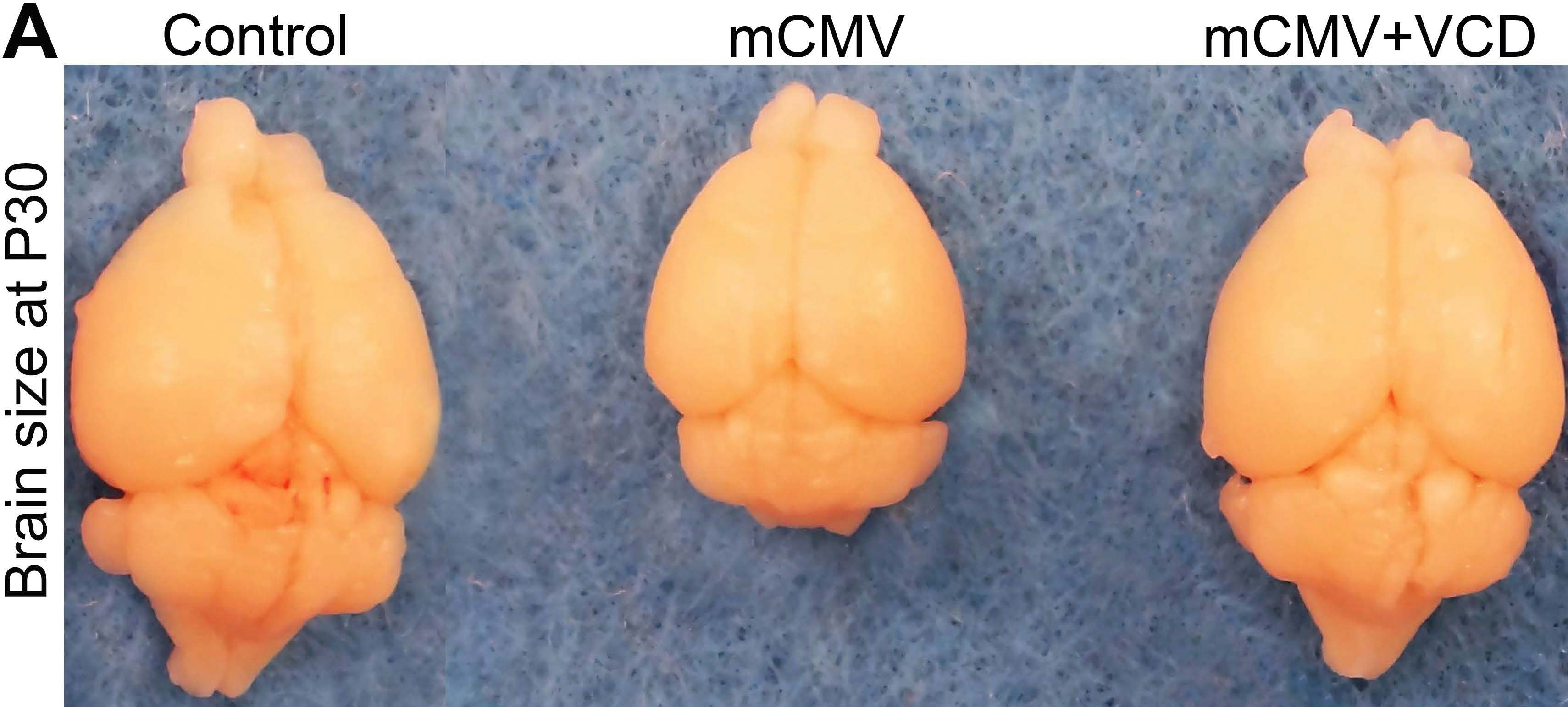 Valnoctamide Reverses Deficient Brain Growth Induced by mCMV Infection