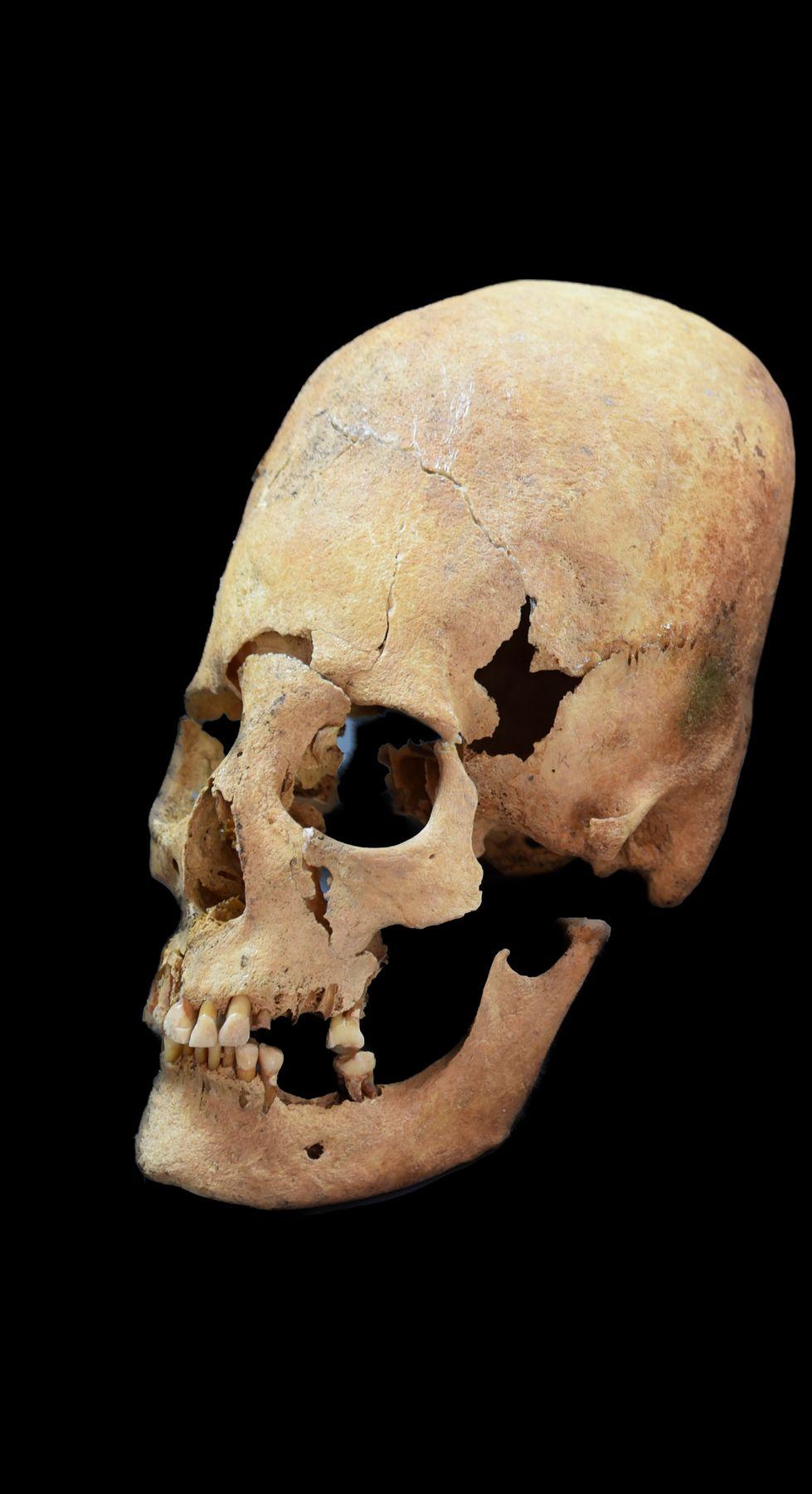 Artificially Deformed Female Skull