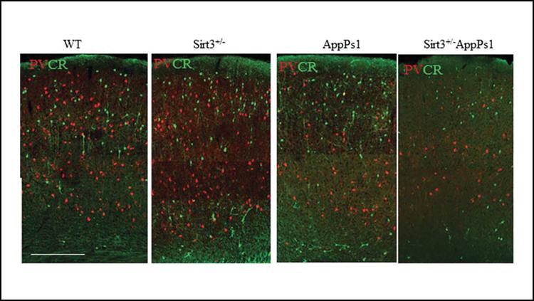 Eating More Ketones May Fight Against Alzheimer's Disease
