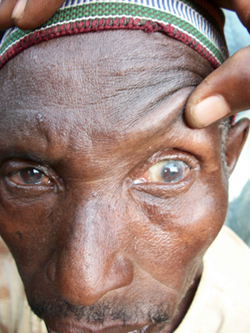 Patient Refusal for Trichiasis Surgery in Tanzania Based Primarily on Misconception of Recovery Time
