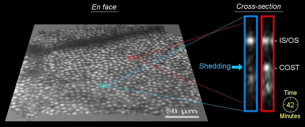 Time-Lapse 3-D Imaging Detects Disc Shedding of Photoreceptor Cells in the Living Human Eye
