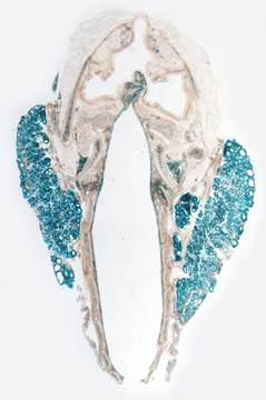 VEGF-A (Blue) in Follicular Cells of the Thyroid