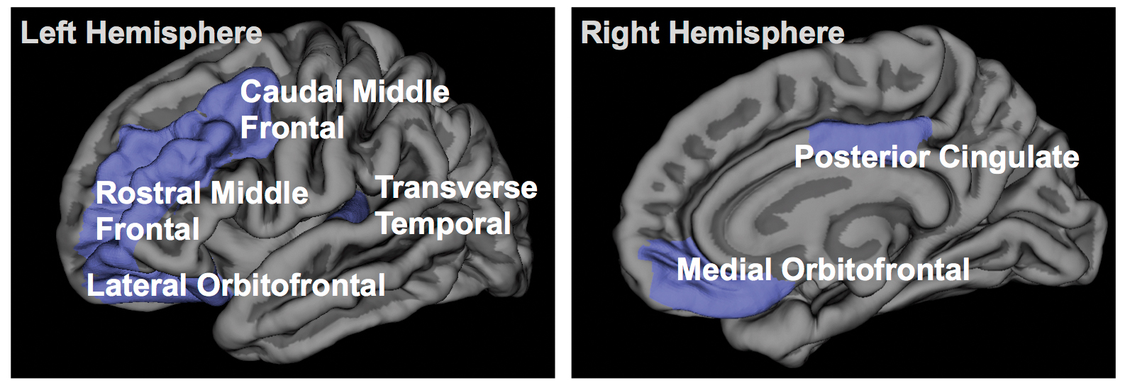 Insomnia Therapy and Gray Matter
