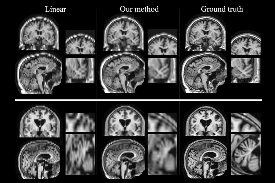 Better MRI