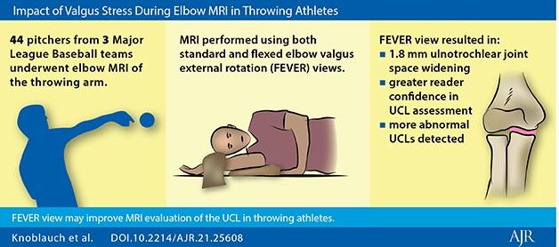 Impact of Valgus Stress During Elbow MRI in Throwing Athletes