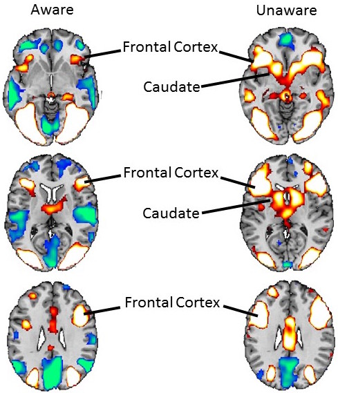fMRI Images of Spider Phobic Individuals