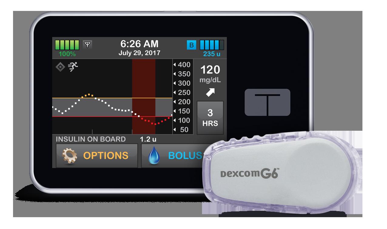 Control-IQ Diabetes Management System