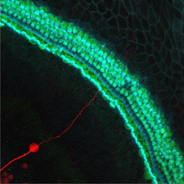 Stem Cell-Derived Neuron