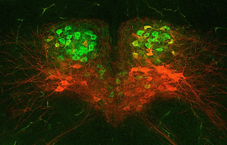 Misfiring motor neurons