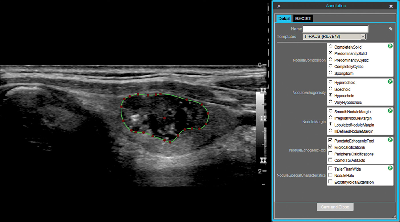 73-Year-Old Man with Papillary Carcinoma of Left Lobe of Thyroid