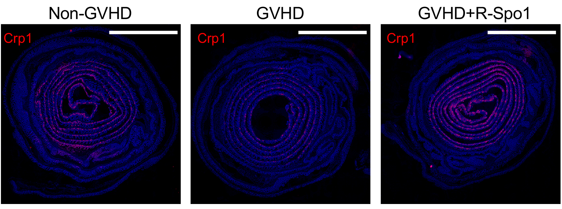 R-Spondin1 Protects Paneth Cells Against GVHD
