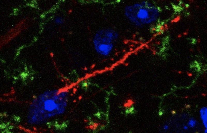 Microglia Wrapping