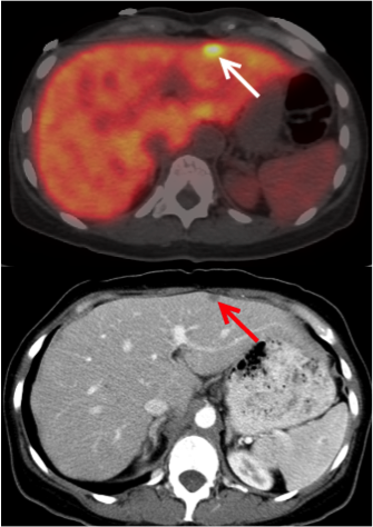 49-Year-Old Female with Metastatic Pancreatic