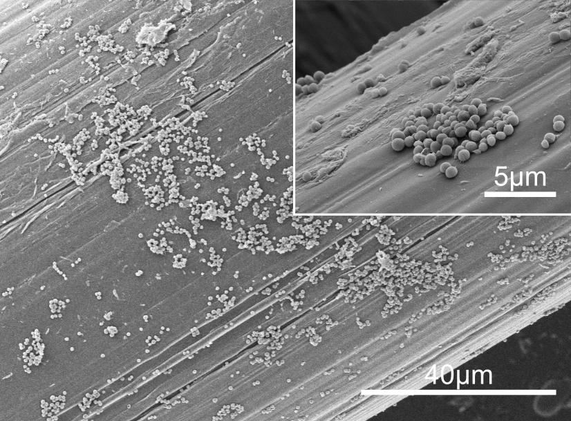 SEM Micrographs of the <em>S. aureus</em> Biofilm Formed on the Surgical Mesh Surface