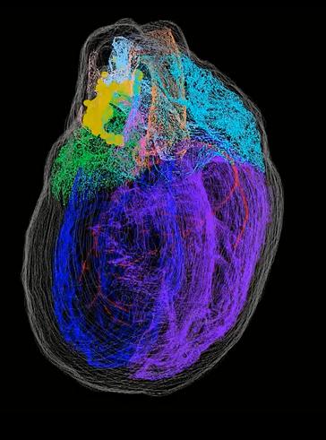 Virtual heart image
