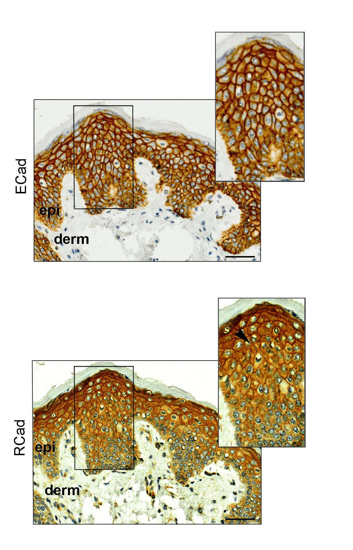 E-Caderina and R-Caderina in Breast Cancer