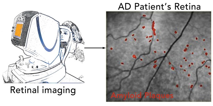 Retinal Imaging for Early Detection of Alzheimer's Disease
