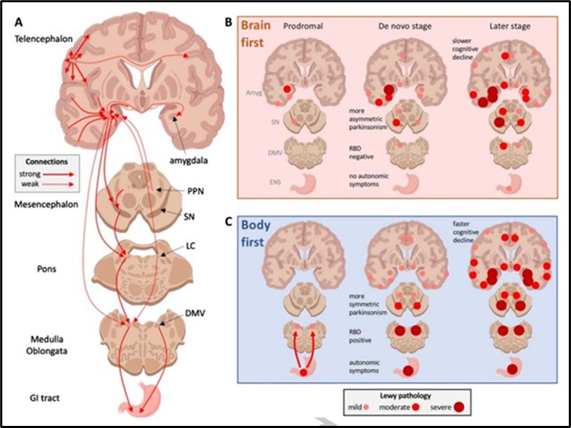 : A) Schematic representation of important connectome details in Parkinson's disease (PD)