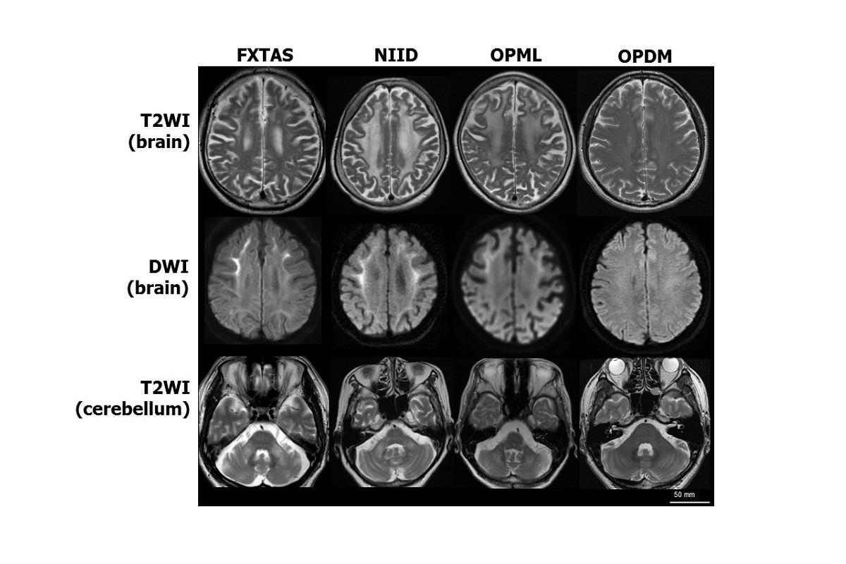 MRI Brain Scans of Patients with Similar Neurodegenerative Symptoms
